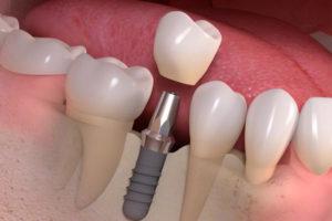 implant dentaire-hongrie